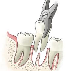 удаление зубов калуга