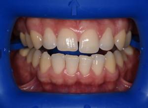Пац1 (До)Отбеливание зубов