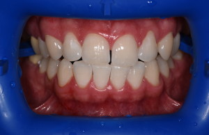 Пац1 (после)Отбеливание зубов