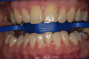 Пац2 (До)Отбеливание зубов