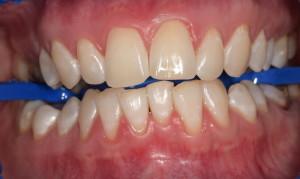 Пац2 (После)Отбеливание зубов