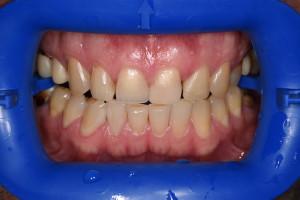 Пац3 (До)Отбеливание зубов