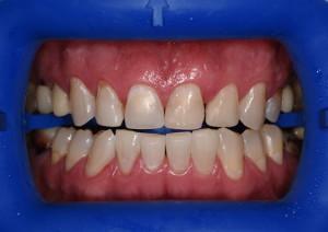 Пац3 (После)Отбеливание зубов