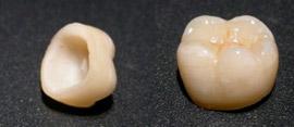 bezmetallovaya-keramika2