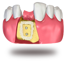 костная пластика калуга
