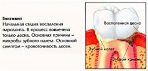 gingivit1-300x145