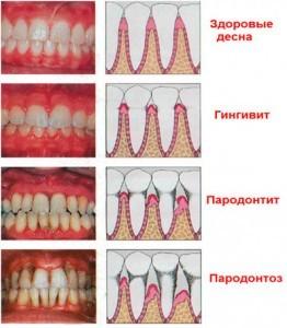 gingivit4-262x300