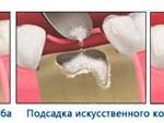 kostnaya-plastika-1