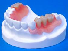 nejlonovy-e-zubny-e-protezy-3