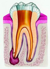 periodontit2