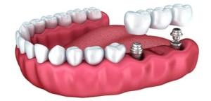 протезирование зубов калуга цена
