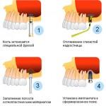 sinus-lifting-3