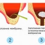 sinus-lifting-4