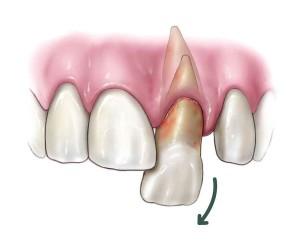 ремплантация зуба калуга