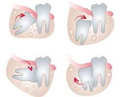 удаление зуба мудрости калуга