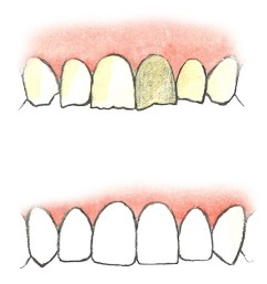 реставрация зубов калуга цена