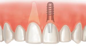 имплантация зубов верхней челюсти калуга цена