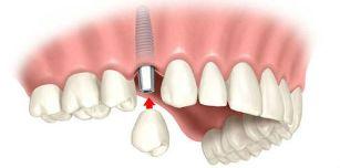 имплантация зубов верхней челюсти калуга