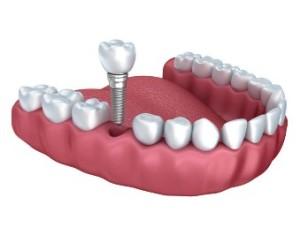 имплантация зубов нижней челюсти калуга