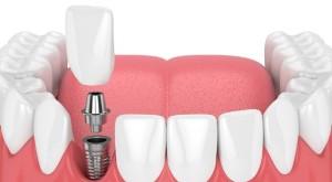 имплантация зубов нижней челюсти калуга цена