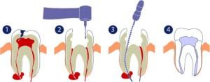 лечение кисты зуба калуга цена