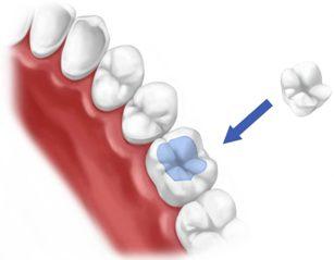 реставрация зубов калуга