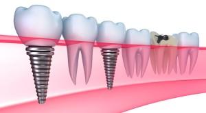 виды имплантации зубов калуга