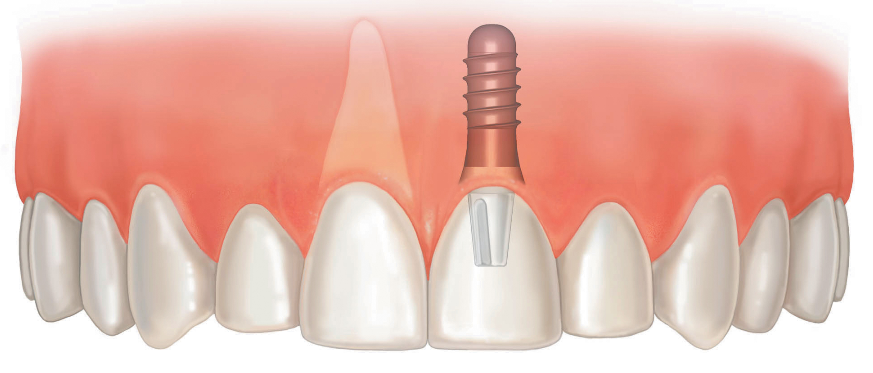 импланты на передние зубы калуга цена