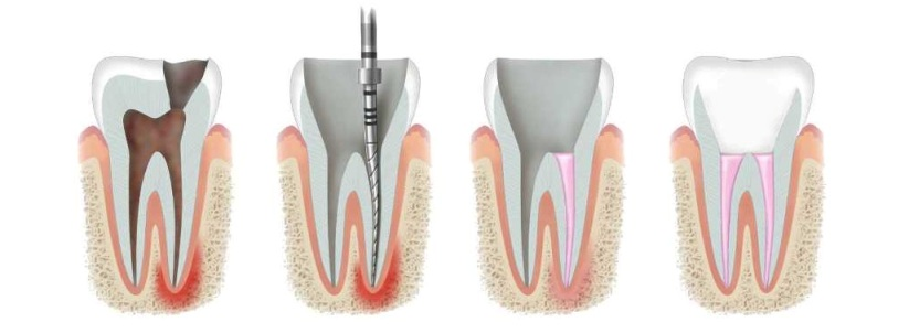 лечение канала зуба цена