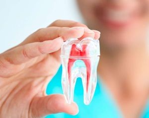 лечение канала зуба калуга