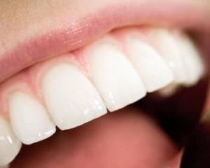 лечение передних зубов калуга