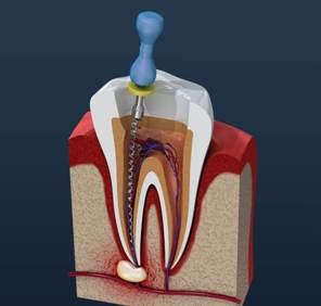 удаление нерва зуба калуга